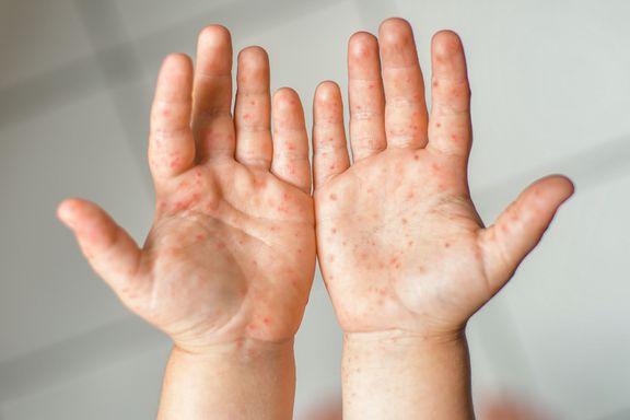 Hand-Fuß-Mund-Krankheit: Anzeichen, Symptome und Behandlungen