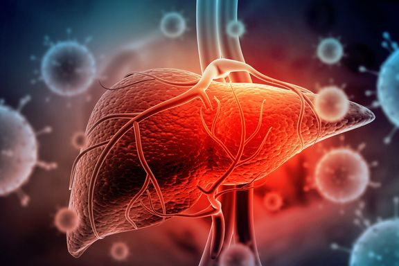 Hepatitis A: Signs, Causes, Treatment, and Prevention