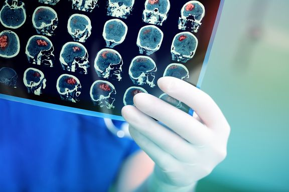 Mögliche Anzeichen eines Hirntumors, die nicht ignoriert werden sollten
